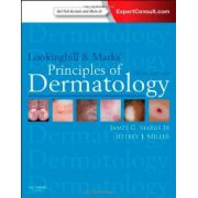 Lookingbill and Marks' Principles of Dermatology: Expert Consult Online and Print