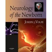 Neurology of the Newborn