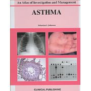 Asthma: An Atlas of Investigation and Diagnosis