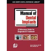 Manual Of Dental Implants: A Reference Guide For Diagnosis And Treatment