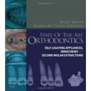 State-of-the-Art Orthodontics: Self-Ligating Applicances, Miniscrews & Second Molar Extractions