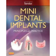 Mini Dental Implants Principles and Practice