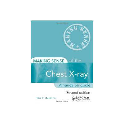 Making Sense of the Chest X-ray